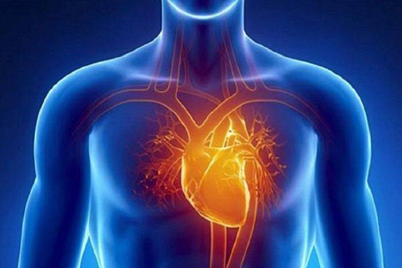 Herzinfarkts
